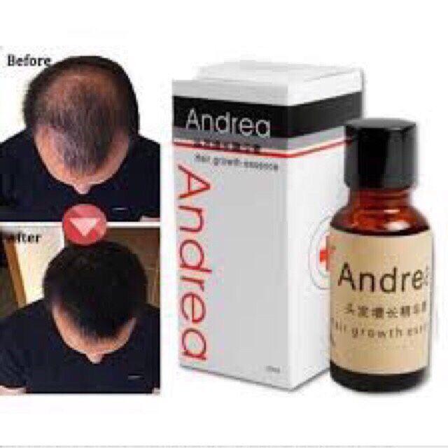 Serum kích mọc tóc mọc râu Andrea giúp tóc bạn mọc dày hơn, kích thích tăng trưởng của tóc tại những vùng da đầu không mọc tóc hoặc tóc thưa, ngăn ngừa rụng tóc, đem lại cho bạn một mái tóc dày bóng, chắc khoẻ, mềm mượt.