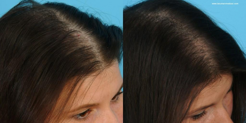 Kaminomoto EX giúp thúc đẩy quá trình hình thành, kích thích mạnh mẽ đến sự phát triển của tóc mới bằng cách kích hoạt sợi tóc cung cấp dinh dưỡng cho chân tóc