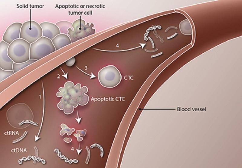 Thành tựu mới trong chẩn đoán và chăm sóc bệnh nhân ung thư