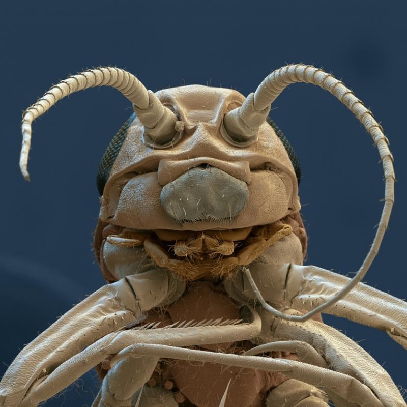Chấy Pediculus humanus capitis