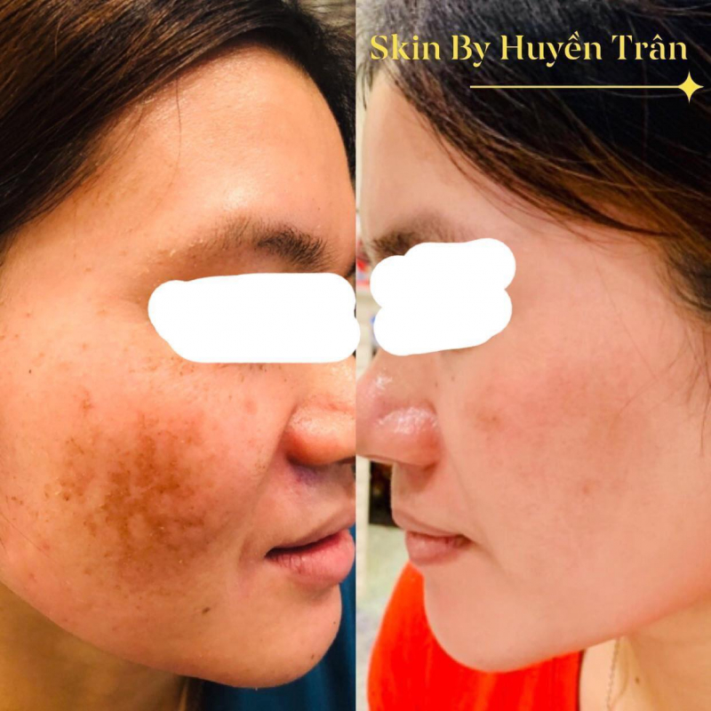 Skin by Huyen Tran Spa