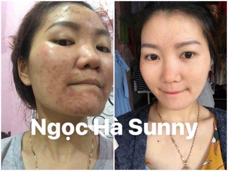 Ngọc Hà Sunny Spa