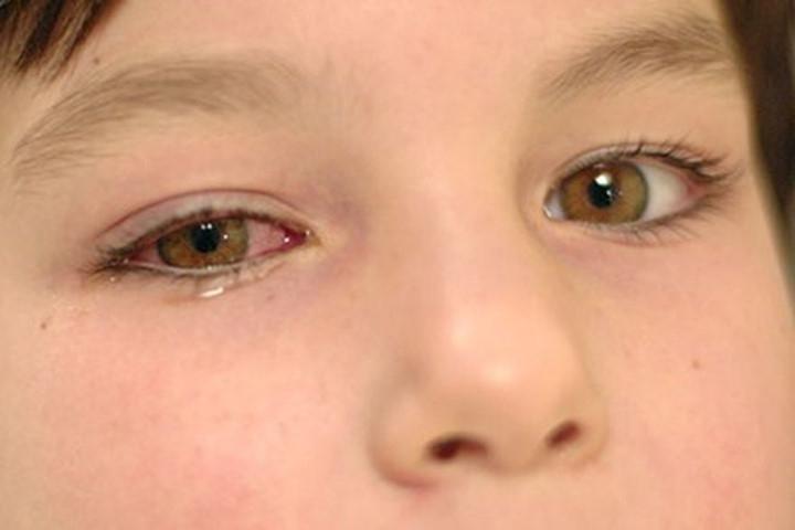 Sử dụng nhiều loại thuốc nhỏ mắt một lúc có thể gây nóng rát mắt, chảy nước mắt