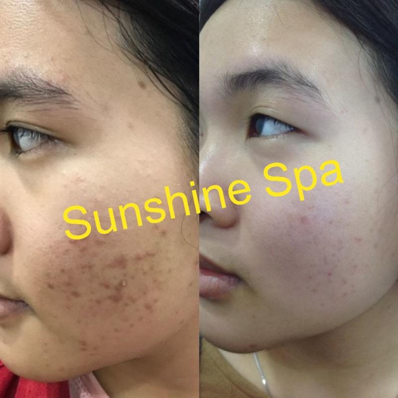 Sunshine Spa tập trung chuyên sâu vào quá trình phục hồi, cải tạo làn da, vóc dáng của chị em phụ nữ.