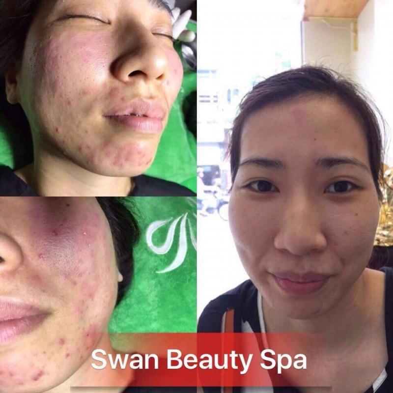 Swan Beauty Spa Hải Phòng