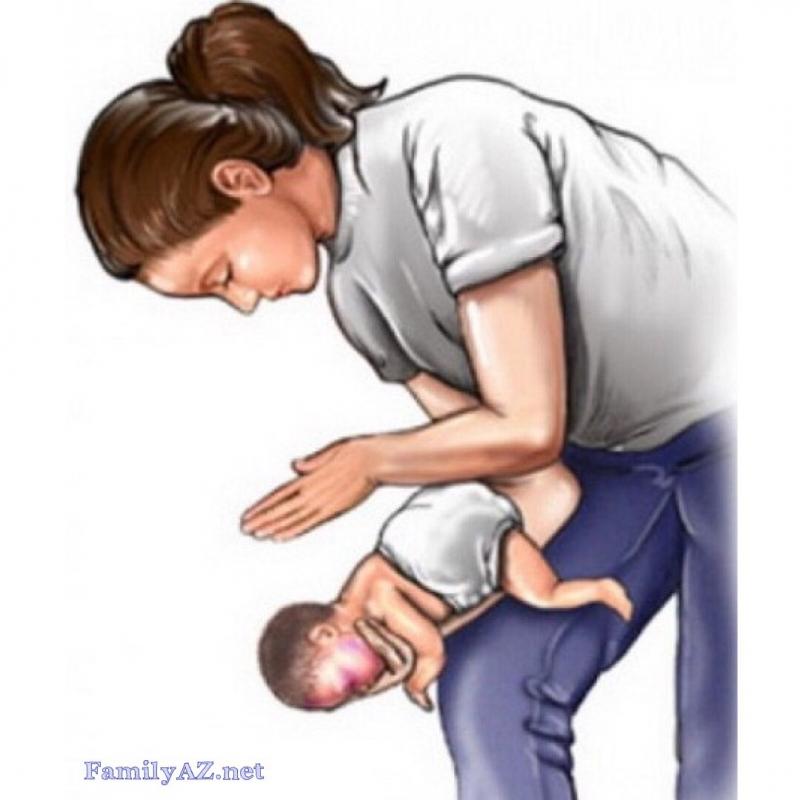 Vỗ lưng cho trẻ khi trẻ bị hóc
