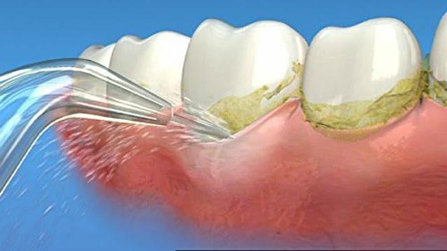 Tăm nước Water Pik Plus WP-450 có nhiều đầu và vòi vệ sinh răng miệng giúp làm sạch hiệu quả, nhanh chóng.