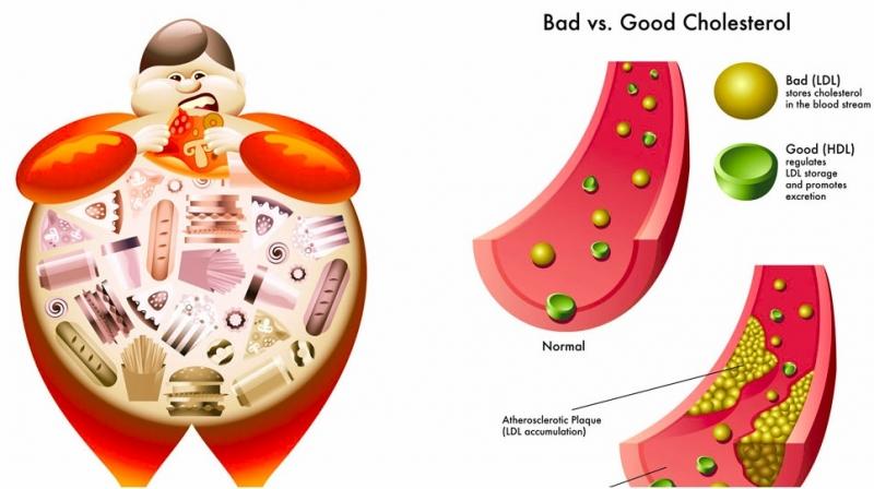 Cholesterol có hại gây ảnh hưởng xấu đến cơ thể