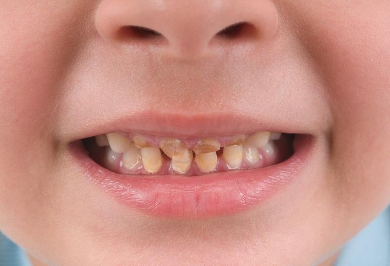 Việc sử dụng tetracyclin trong quy trình mang thai rất có thể tác động không tốt đế sử phát triển xương và răng ở thai nhi.