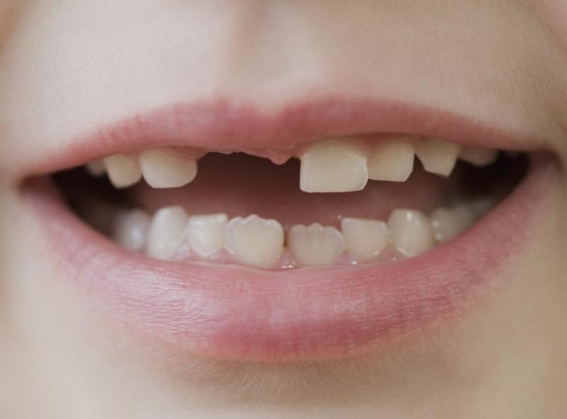 Tetracyclin gây đổi màu răng ở trẻ