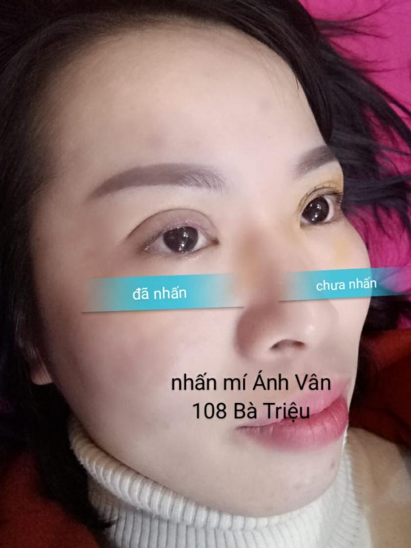 Thẩm Mỹ Ánh Vân