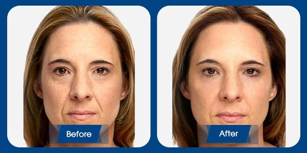 Hình ảnh khách hàng trước và sau căng da