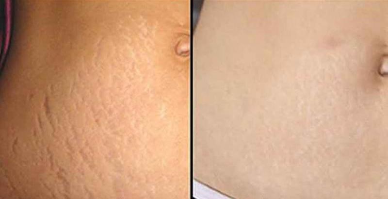 Tình trạng rạn da cải thiện rõ rệt sau liệu trình điều trị tại TM Hồng Ngọc
