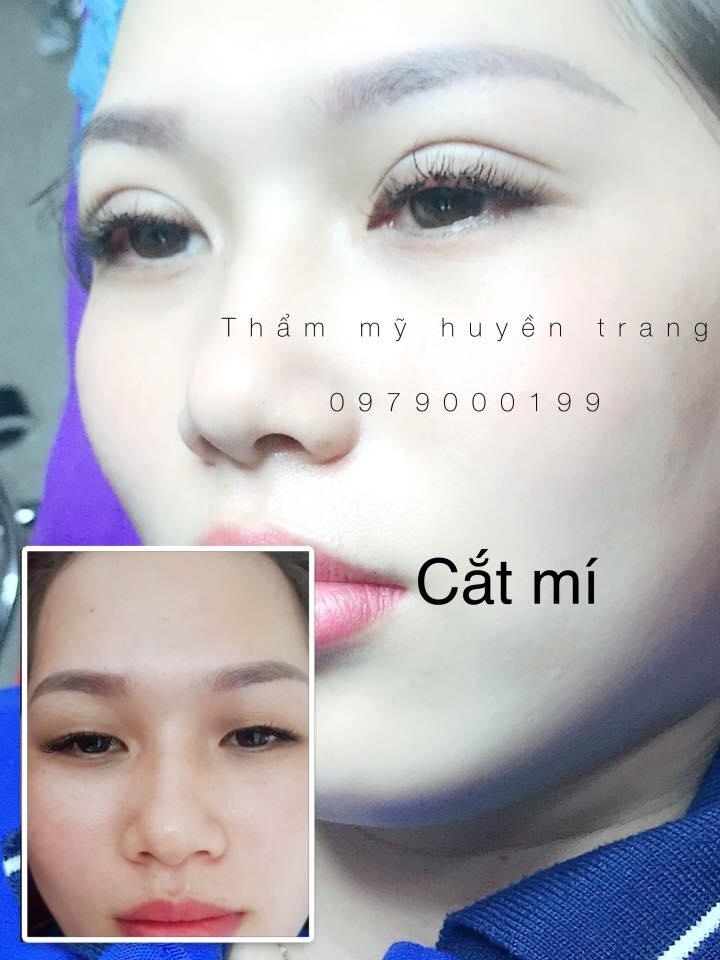 Thẩm Mỹ Huyền Trang