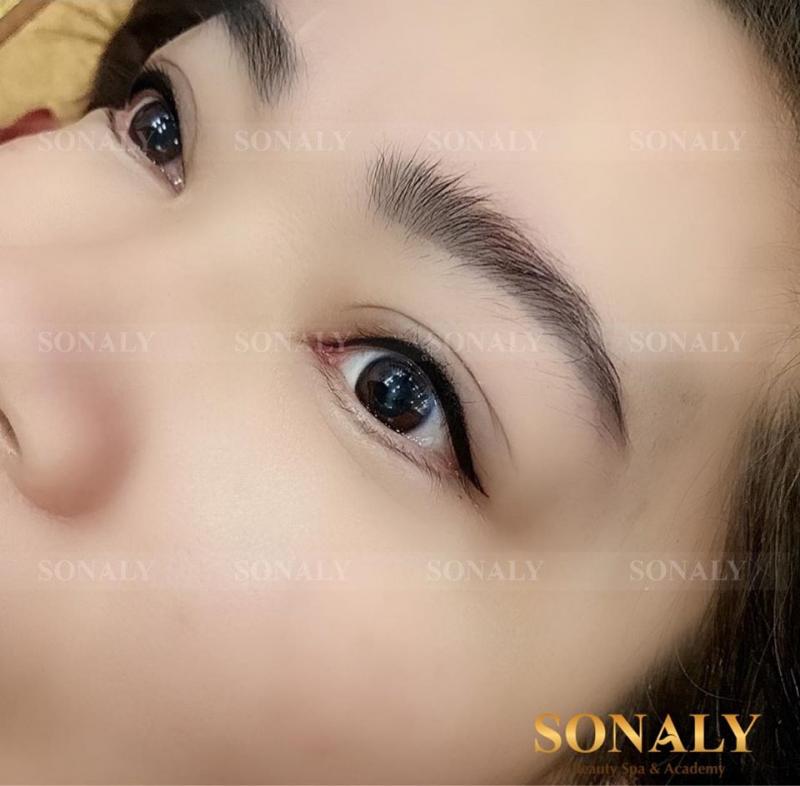 Thẩm Mỹ SonaLy