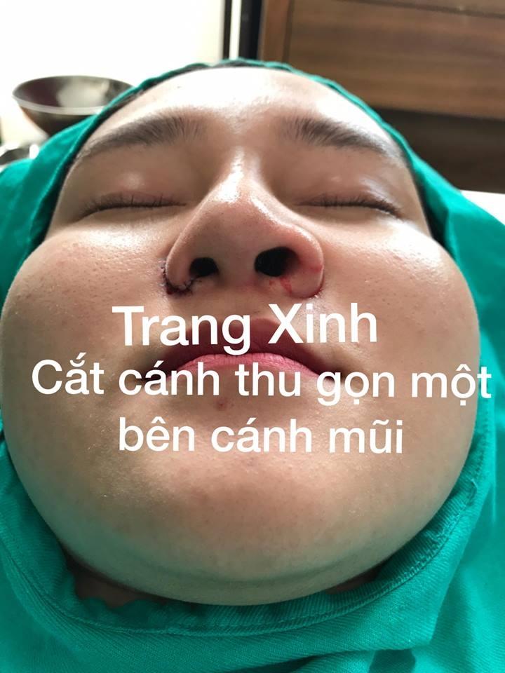 Trang Xinh