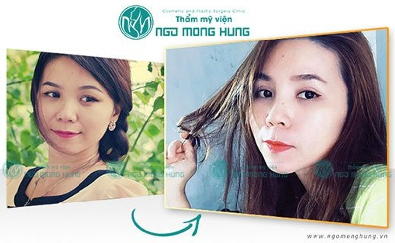 Hình ảnh khách hàng cắt mắt hai mí tại TMV BS Ngô Mộng Hùng