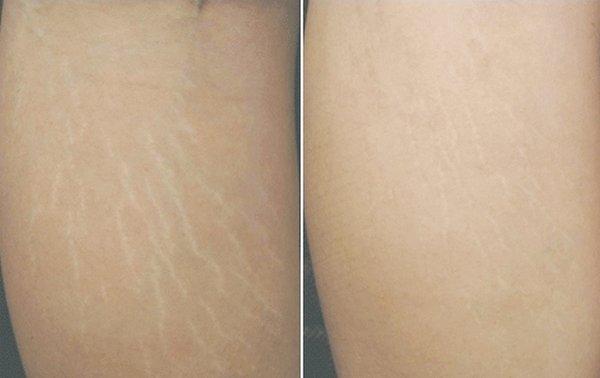 Kết quả sau điều trị rạn da tại TMV châu Á Sài Gòn