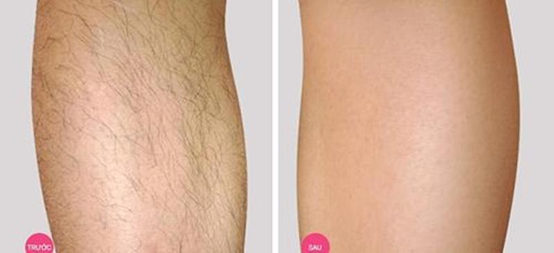 Sự khác biệt hoàn toàn trước và sau khi sử dụng công nghệ triệt lông tại Đông Á
