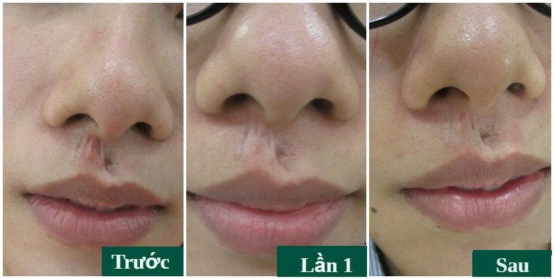 Hình ảnh khách hàng trước và sau khi điều trị sẹo lồi tại Đông Á