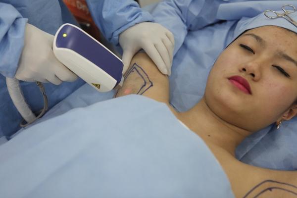 Công nghệ điều trị hôi nách vĩnh viễn Ultra Dry tại TMV Đông Á