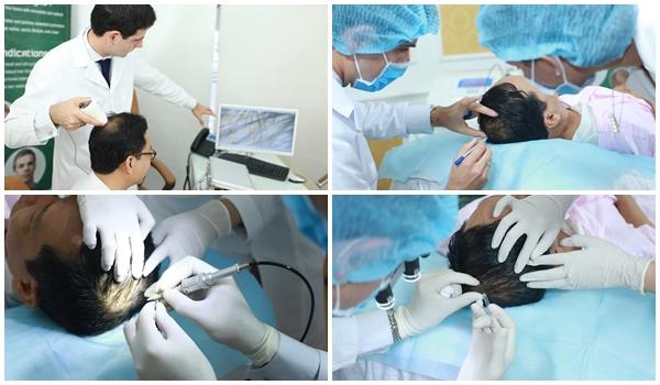 Quy trình cấy tóc tại TMV Đông Á