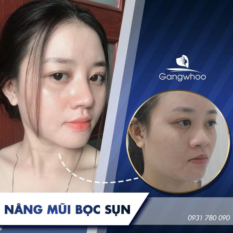 Thẩm mỹ viện Gangwhoo