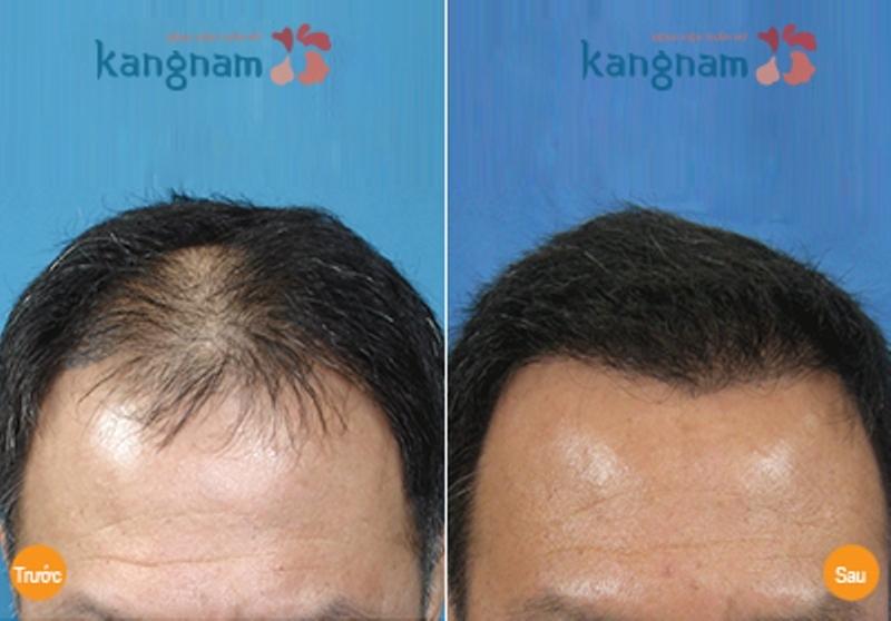 Tóc mọc dày và đều sau điều trị tại Kangnam