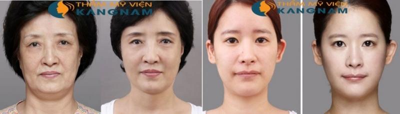 Kết quả khác biệt hoàn toàn khi căng da mặt tại Kangnam
