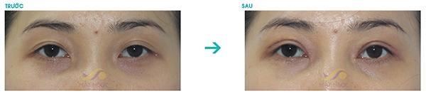 Khách hàng cắt mắt hai mí tại TMV Mắt Ngọc