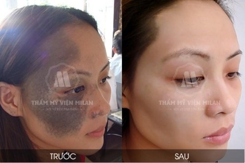Hình ảnh khách hàng điều trị chàm bớt bẩm sinh tại TMV Milan