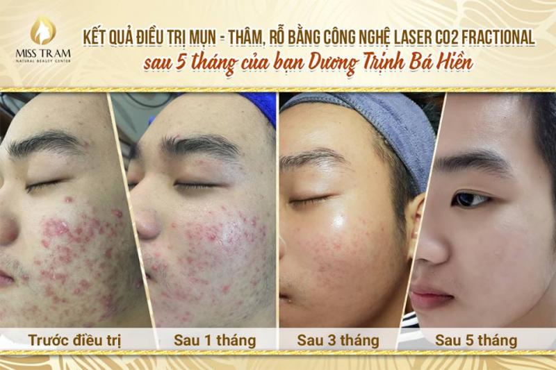 Miss Trâm – Natural Beauty Center hoạt động theo phương châm mang đến vẻ đẹp tự nhiên, hài hòa, sự hài lòng tuyệt đối cho khách hàng