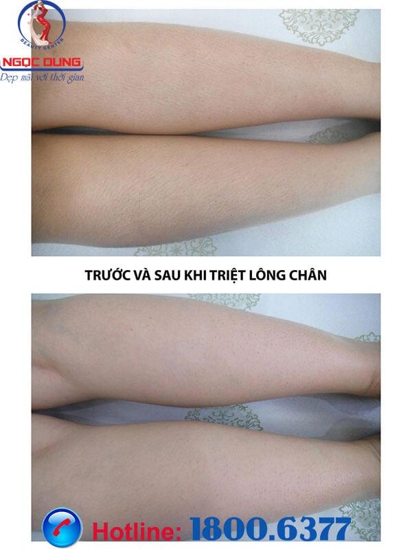 Chân trước và sau khi triệt lông