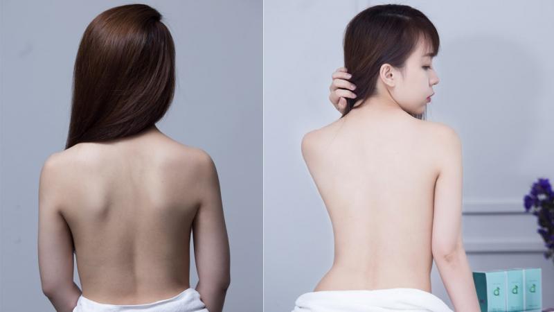 Top 9 Spa tắm trắng uy tín nhất Nha Trang