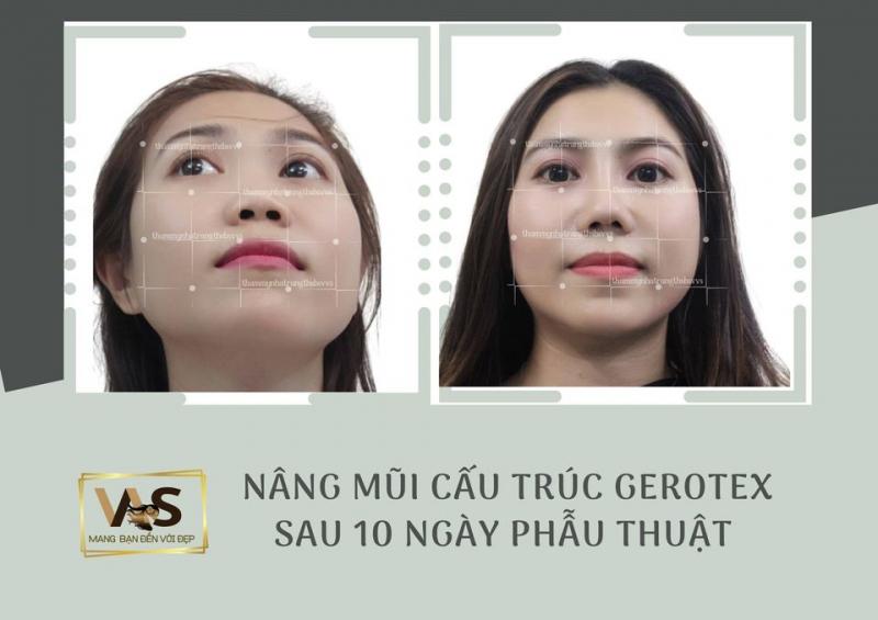 Thẩm mỹ viện Nha Trang - ThS.BS. Vũ Viết Sơn