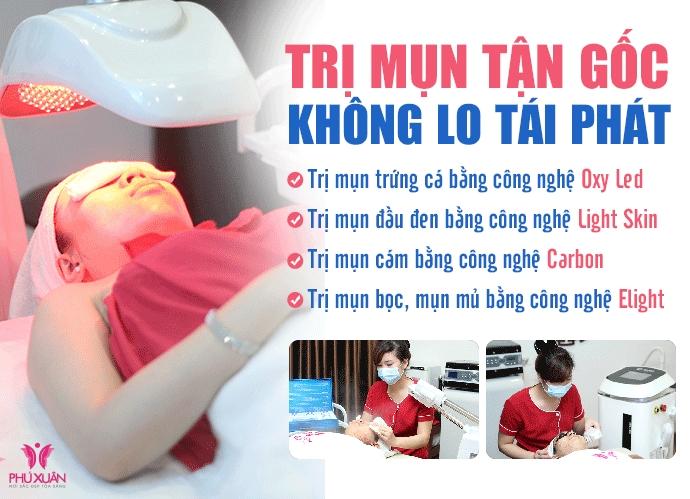 Nhưng công nghệ trị mụn tại Phú Xuân