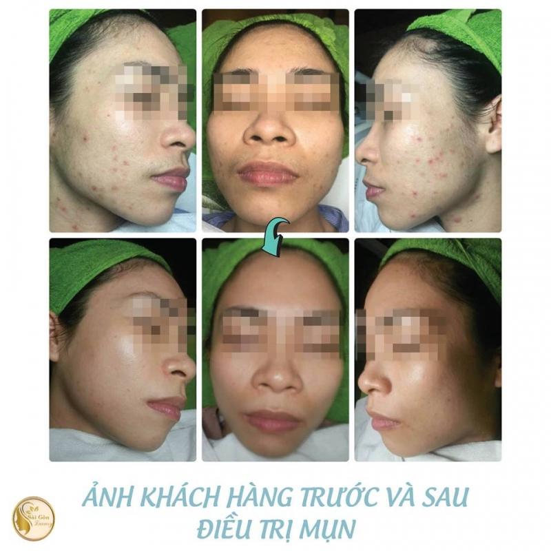 Hầu hết da của các khách hàng đến với Thẩm mỹ viện Sài Gòn Luxury Hải Dương đều được cải thiện đáng kể sau một liệu trình