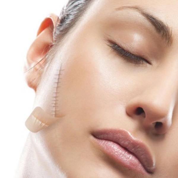 Top 9 thẩm mỹ viện trị sẹo lồi hiệu quả, uy tín hàng đầu tại Hà Nội