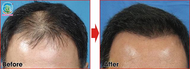 Hình ảnh khách hàng cấy tóc tự thân tại TMV Trương Kiều Xuân