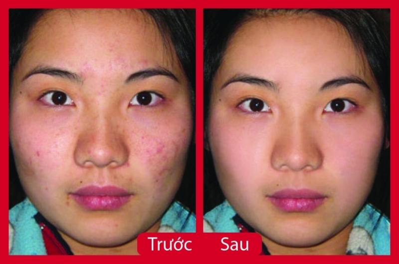 Kết quả điều trị tại Thẩm mỹ viện Xuân Hương