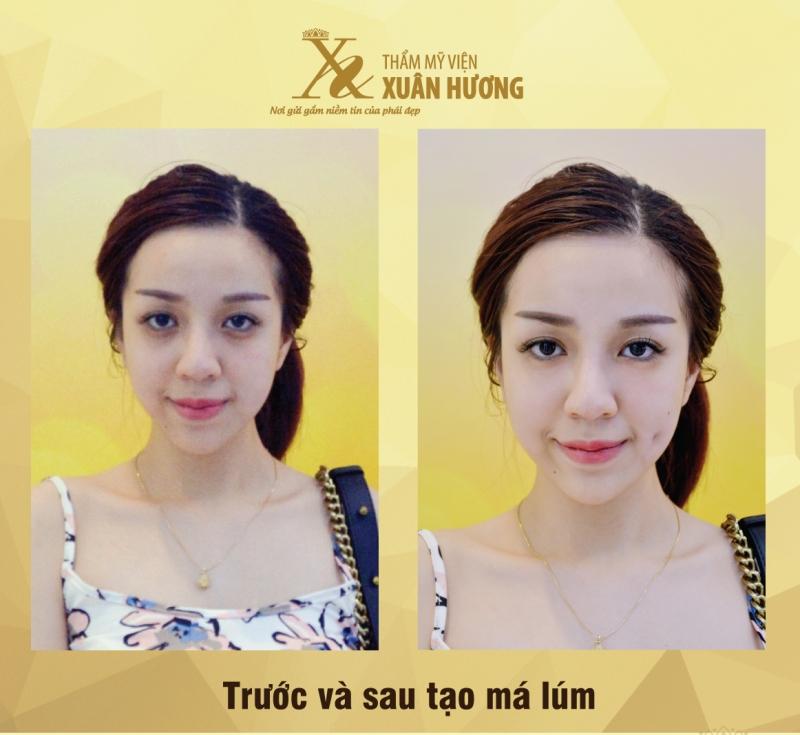 Khách hàng trước và sau tạo má lúm tại TMV Xuân Hương