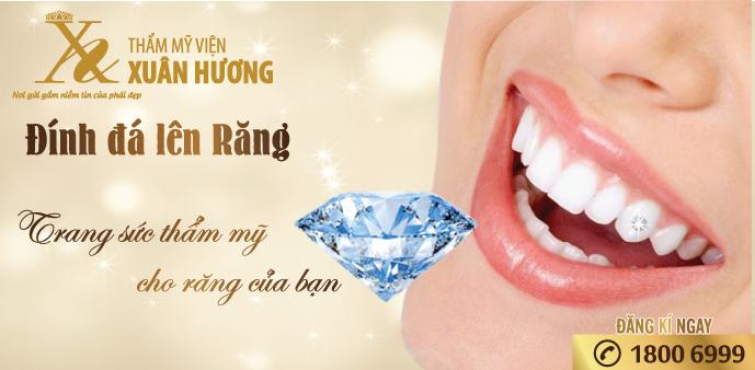 Tmv Xuân Hương, đia chỉ đính đá lên răng tin cậy