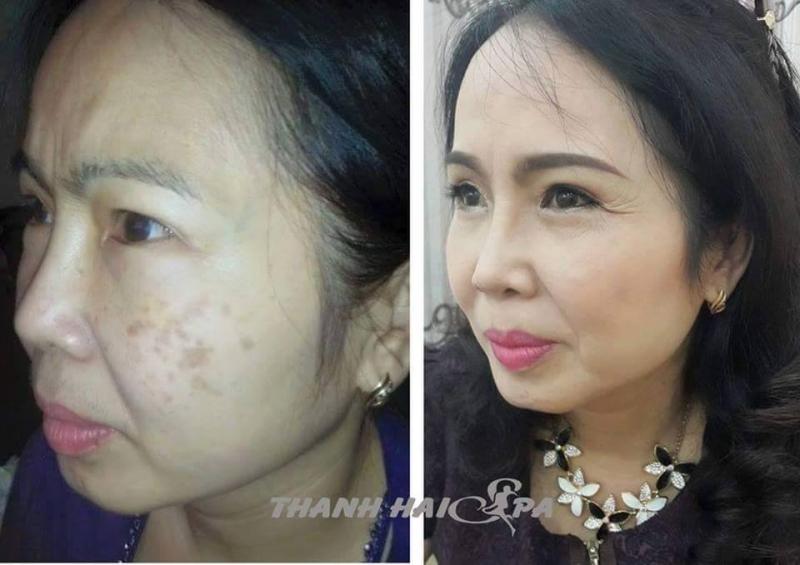 Hình ảnh khách hàng trước và sau điều trị