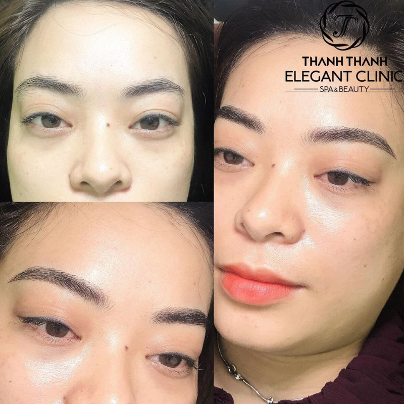 Thanh Thanh Spa - Skincare & Institute cơ sở 2 Diễn Châu