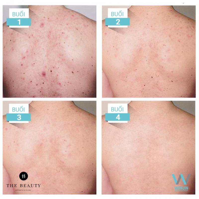 Liệu trình trị mụn lưng body smooth cũng là một liệu trình được rất nhiều bạn trẻ quan tâm trong hè này.