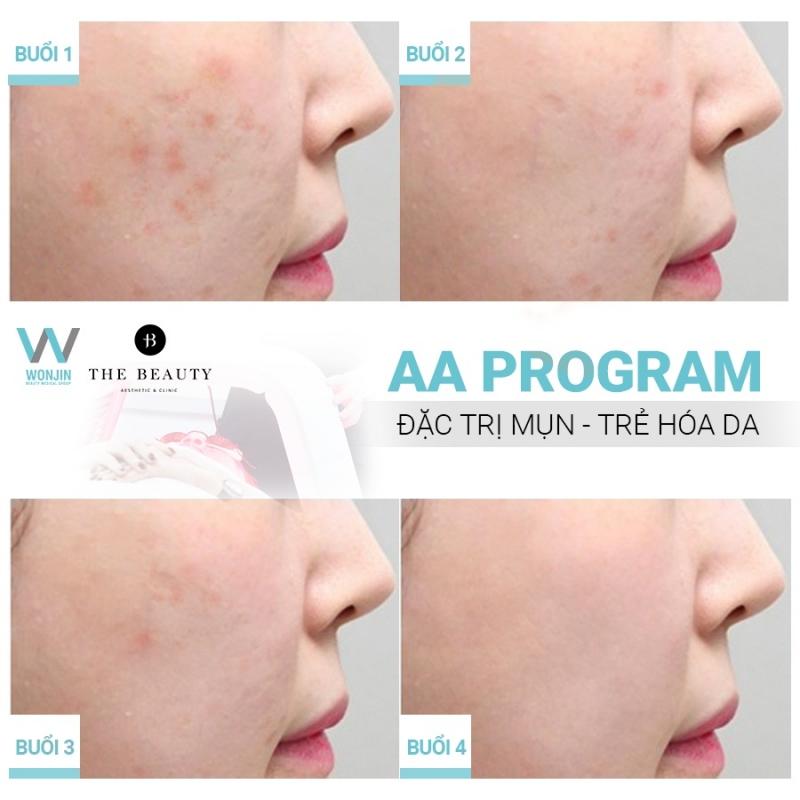 Kết quả của liệu trình đặc trị mụn - trẻ hóa da trên khách hàng của The Beauty Clinic