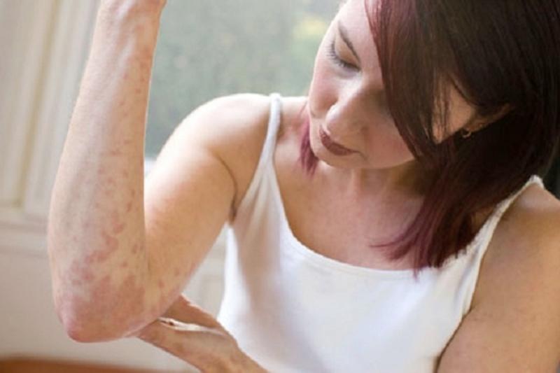 Bệnh chàm không nguy hiểm nhưng gây viêm và ngứa rất khó chịu