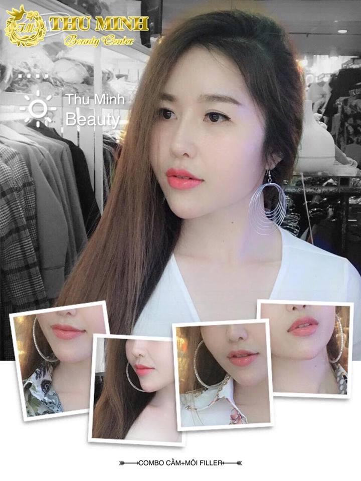 THU MINH Beauty (Thẩm mỹ viện Thu Minh)