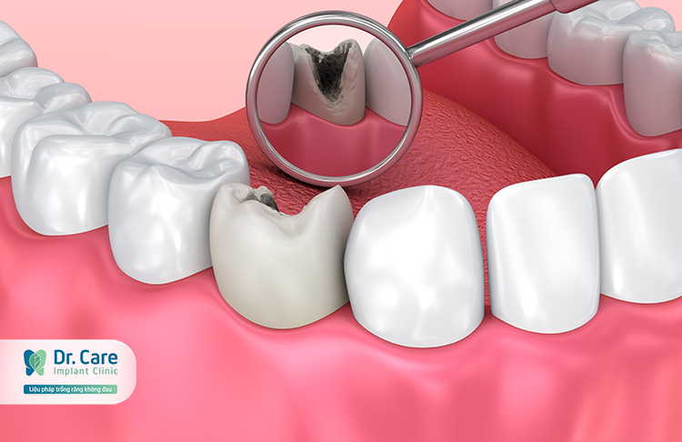 Top 8 thuốc đặc trị sâu răng gia truyền hiệu quả nhất hiện nay