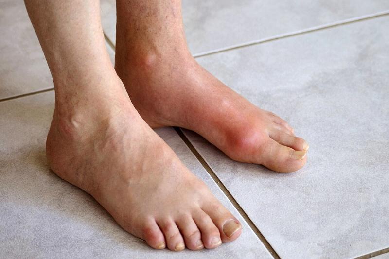 Thuốc điều trị bệnh GoutPro Uric Acid Cleanse Inflammation Supplement điều trị bệnh gout cục hiệu quả
